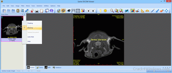 How to crack Sante DICOM Viewer Pro